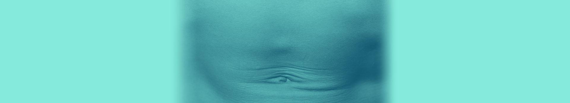 Epigastrik Herni (Göbeküstü Fıtığı)